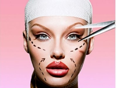 7 Things to Consider before Undergoing Plastic Surgery ...