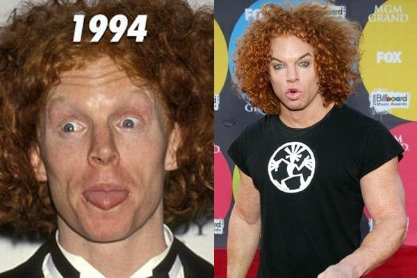 Plastic Surgery Gone Wrong – 29 Worst Celebrity Surgery ...