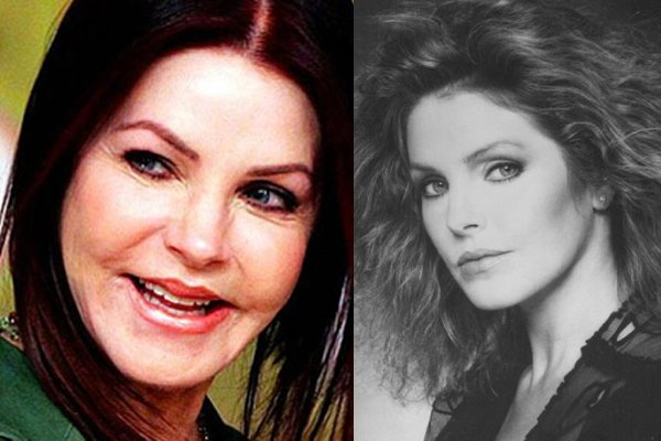 Priscilla Presley These Celebs Just Wanted A Little Plastic