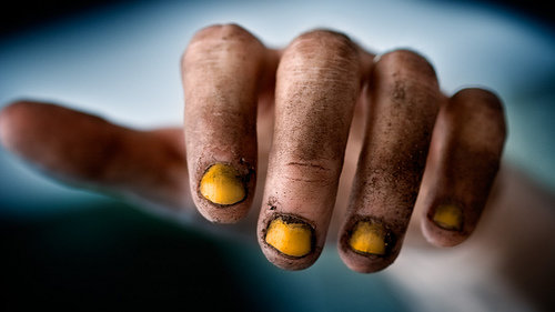 Yellow Fingernails Smoking 65