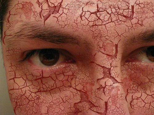 scaly patches on face