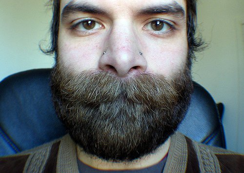 Causes of heavy facial hair