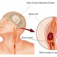 8 Ways to Prevent Strokes ...
