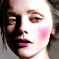 9 Worthwhile Tips for Rosacea ...
