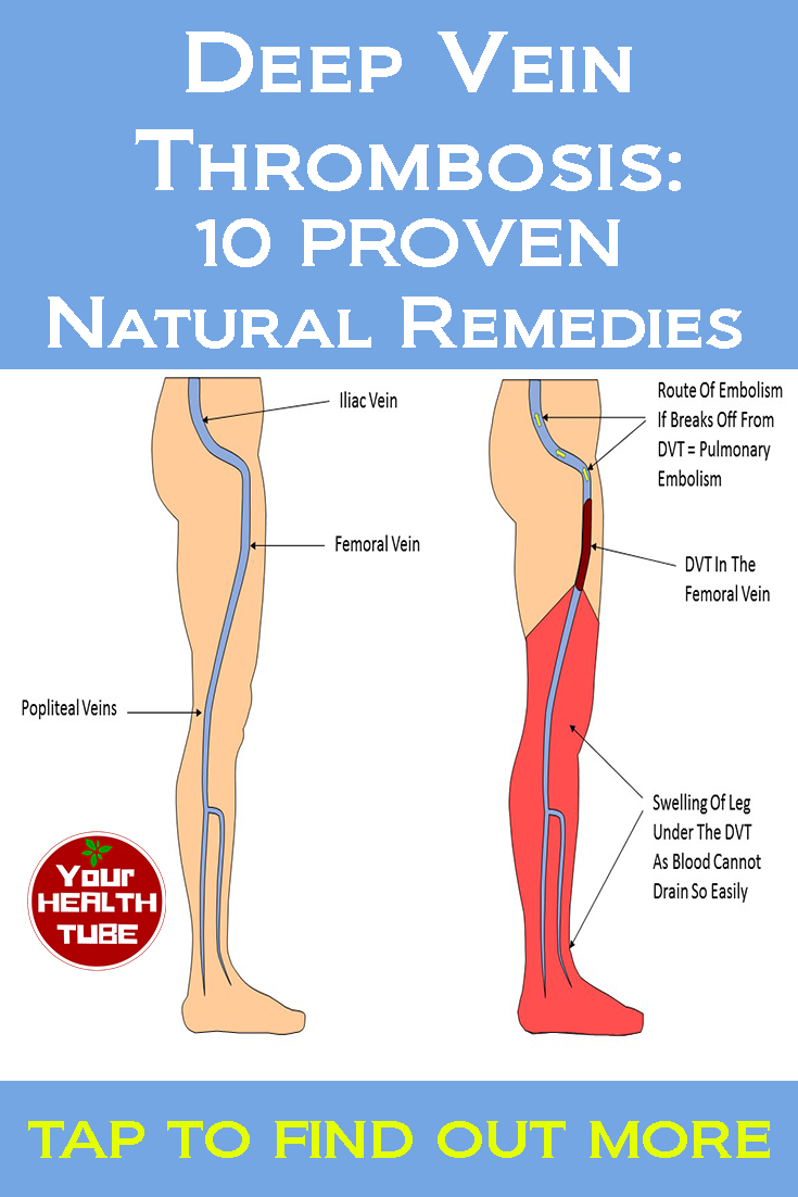 How To Get Rid Of Deep Vein Thrombosis Naturally