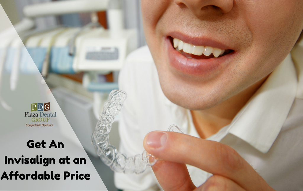 What Do Invisalign Braces Cost? Are they value it?