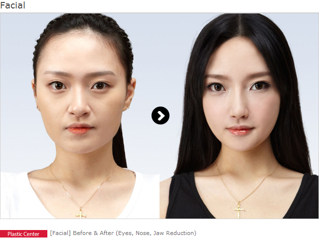 Remove any Ambiguity on the Paths of Plastic Surgery