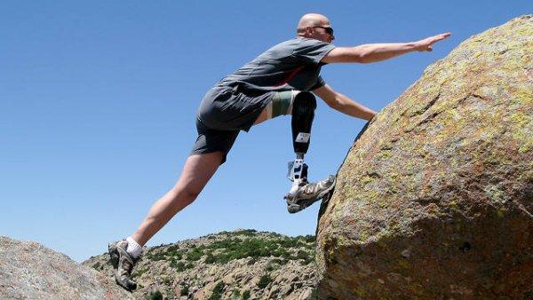 Intelligent Prosthetic Leg