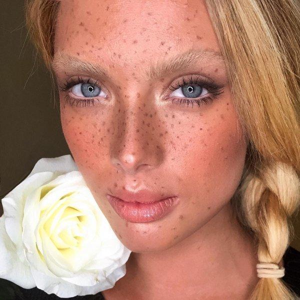 Nikki's Freckles