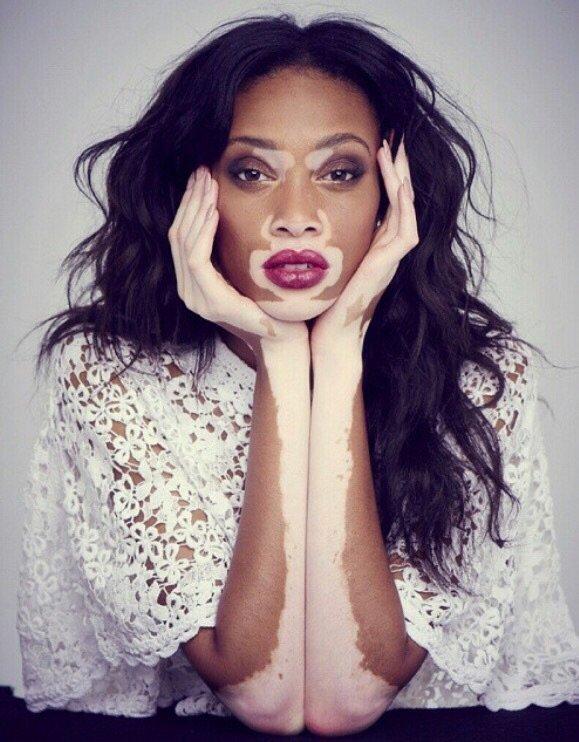 Chantelle Brown-Young Aka Winnie Harlow