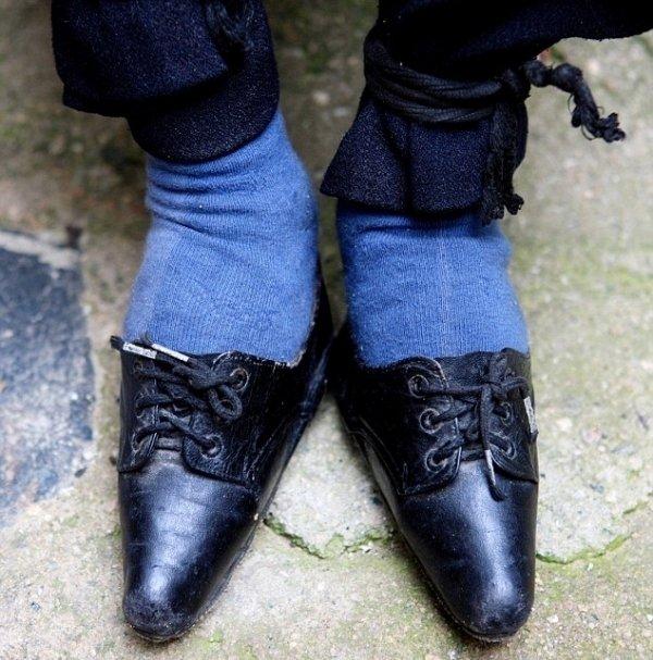 Foot-binding