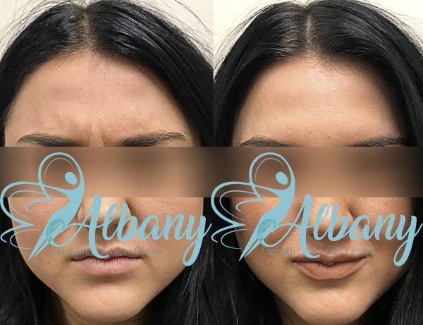 eyebrow, face, cheek, nose, skin,
