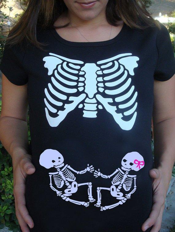 Bone Babies!