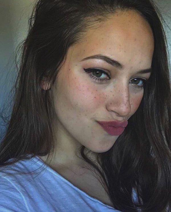 Kaitlyn's Freckles
