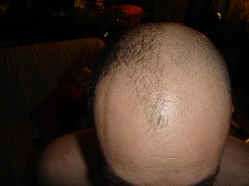 Half-shaved Head