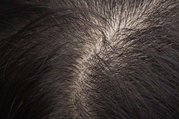 black, brown, fur, close up, mane,